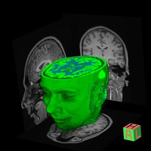 A brain scan showing a green, three-dimensional human head with the top of the brain exposed