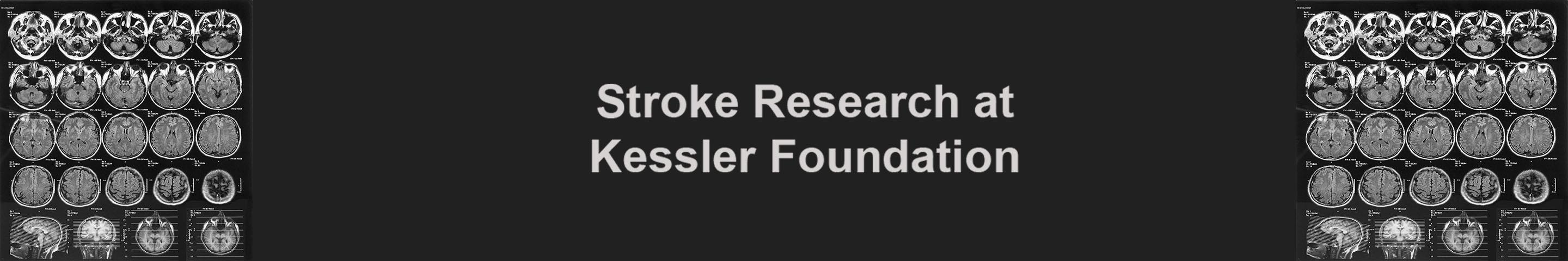 Stroke Research banner