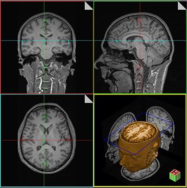 MRI Brain Scan Images